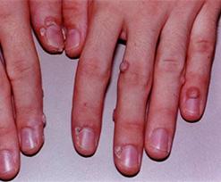 Lesiones benignas